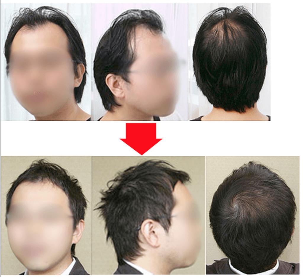 女性100人に聞いた 薄毛が目立たないかっこいい髪型5選 Hairs 本質