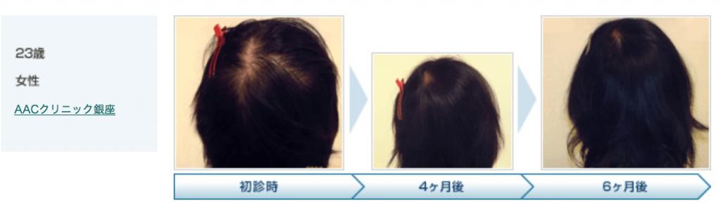 薄毛の改善がみられた例