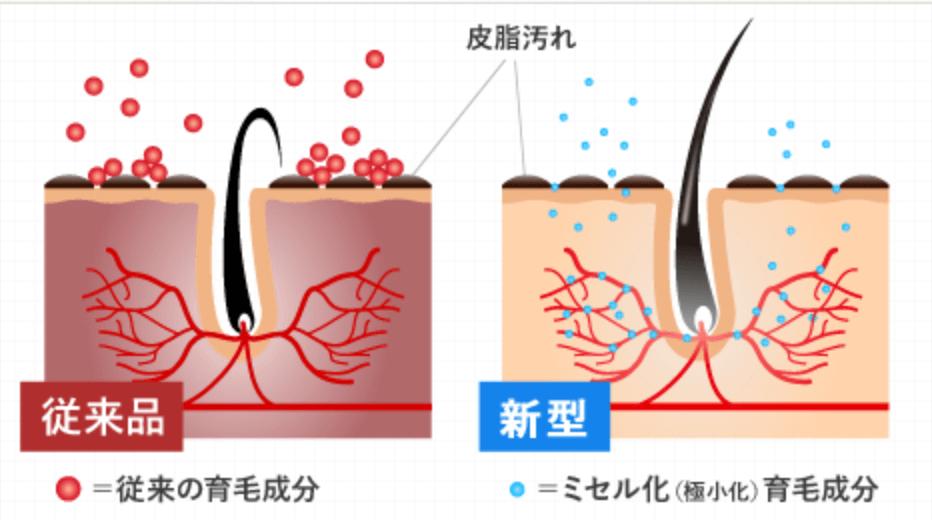 育毛剤初の技術「分子のミセル化」による浸透