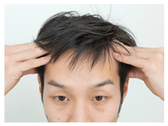 プランテルの使い方「頭皮マッサージをする」