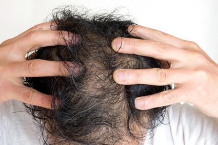 薄毛が進行している人の例