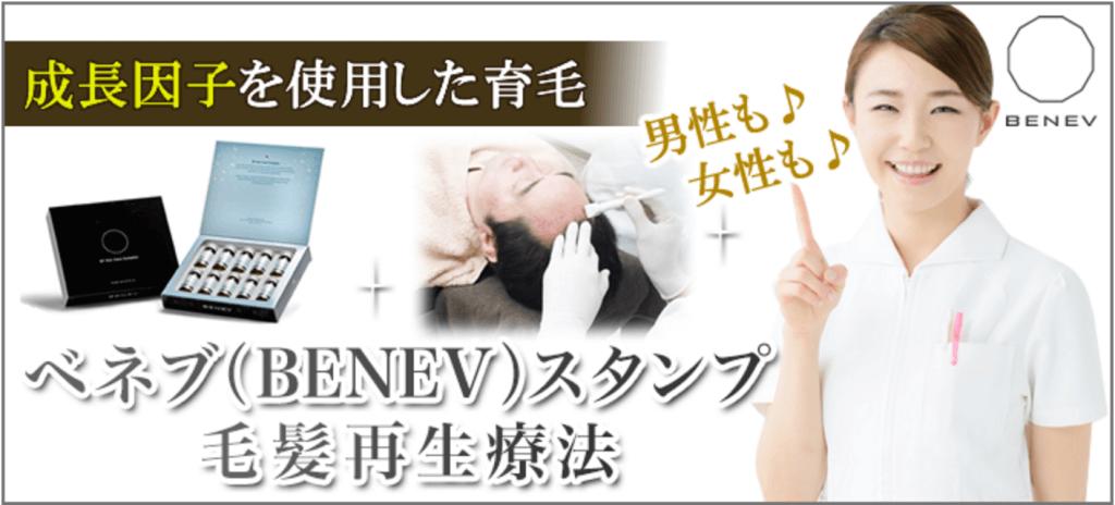 共立美容外科のベネブスタンプ毛髪再生療法