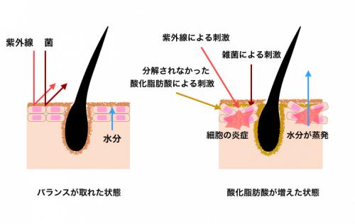皮脂の過剰分泌による炎症や乾燥の様子
