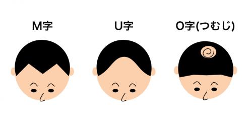M字ハゲ、U字ハゲ、O字ハゲ(つむじハゲ)のイメージ