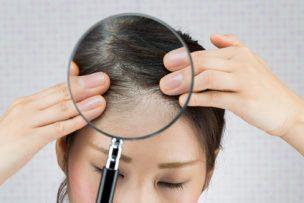 プロが教える世界一わかりやすい頭皮のフケの原因と対策10選
