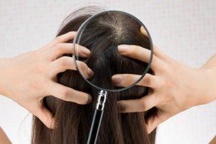 頭皮の炎症の原因と今日からできる対策まとめ【図解付き】