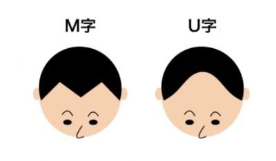 M字ハゲ・U字ハゲのイメージ