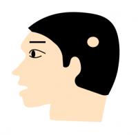 単発型の円形脱毛症