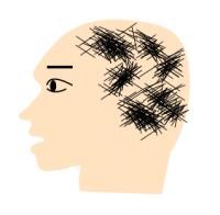 全頭型の円形脱毛症