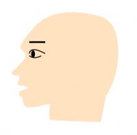 汎発型の円形脱毛症