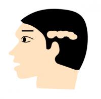 蛇行型の円形脱毛症