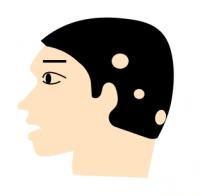 多発型の円形脱毛症