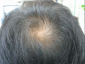 頭頂部の薄毛進行度