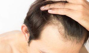 図解でわかる!前髪がはげる7つの原因と今日からできる対策