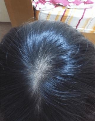Yahoo知恵袋の質問「最近頭頂部が薄毛になっている」