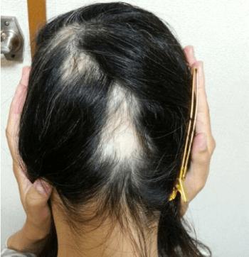 円形脱毛症(蛇行性脱毛症)のイメージ