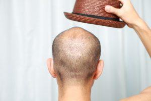薄毛の人は坊主にすべき?女性100人に聞いた髪型のポイント
