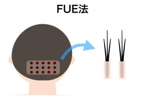 FUE法(ダイレクト法)のイメージ