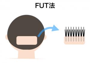 FUT法(ストリップ法)のイメージ
