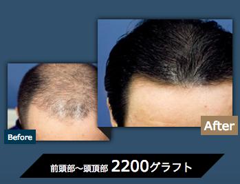 植毛の効果