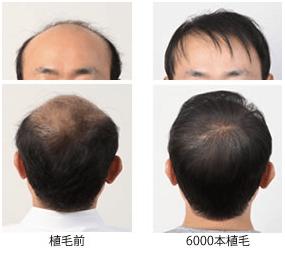 植毛前と植毛後のイメージ