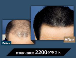 植毛2200グラフトのイメージ