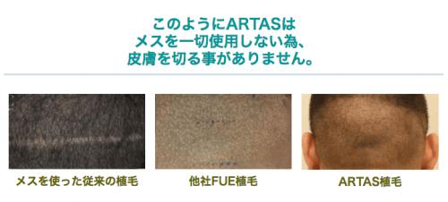 ARTAS植毛の症例