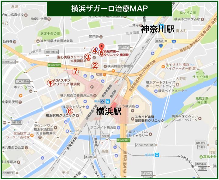 横浜ザガーロ治療MAP