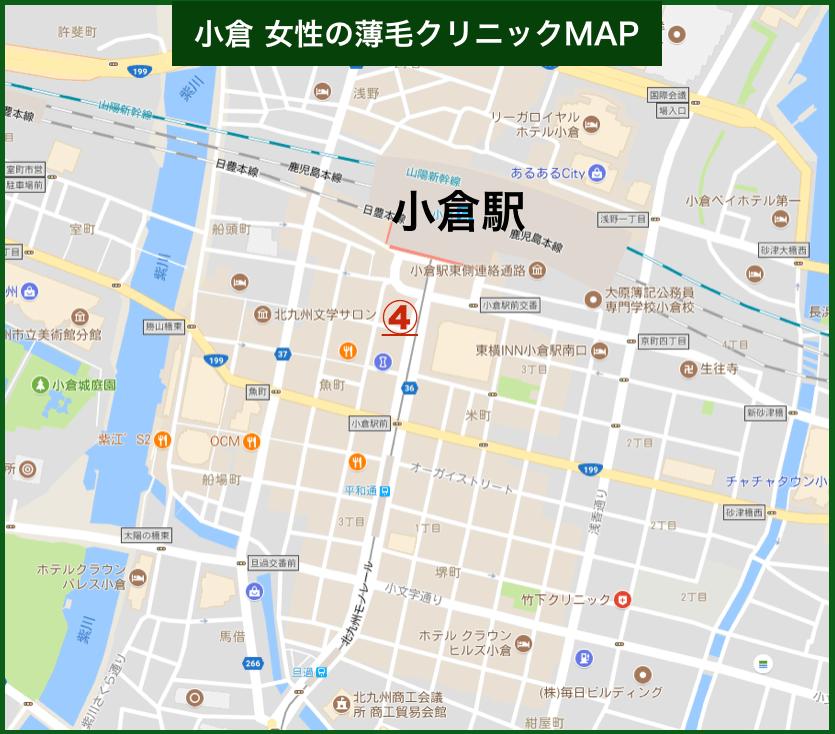 小倉女性の薄毛MAP