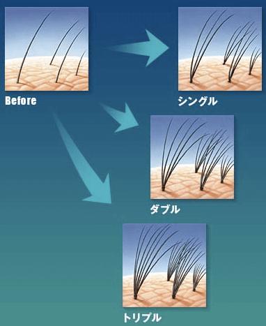 ミクロポイント増毛法のイメージ