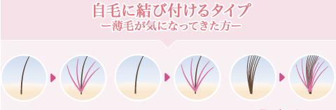 人工毛を「自毛に結びつける」タイプ