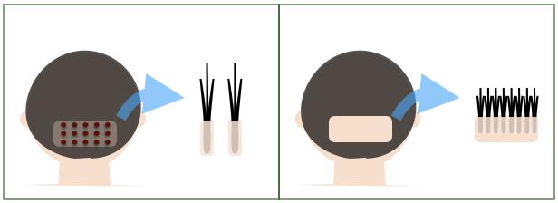 植毛の種類