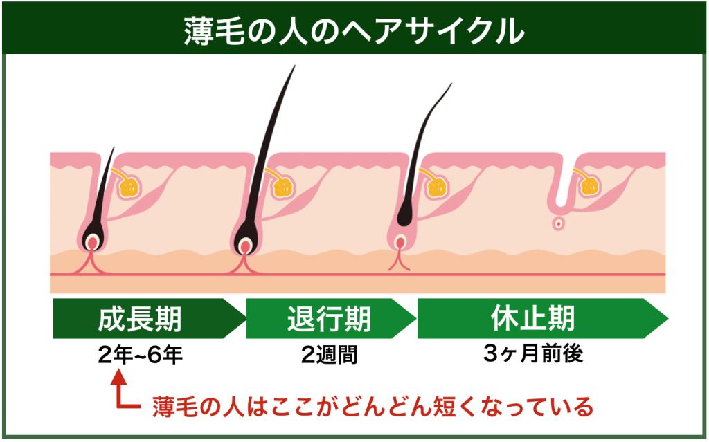 薄毛の人のヘアサイクルの仕組み