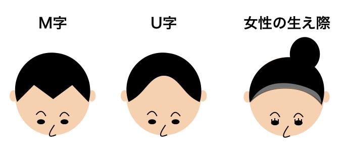 生え際の薄毛のタイプ