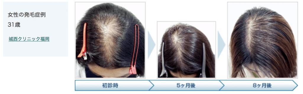 女性の発毛症例のイメージ