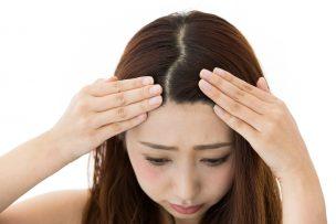 髪の分け目が薄い3つの原因と薄毛を確実に改善する方法まとめ