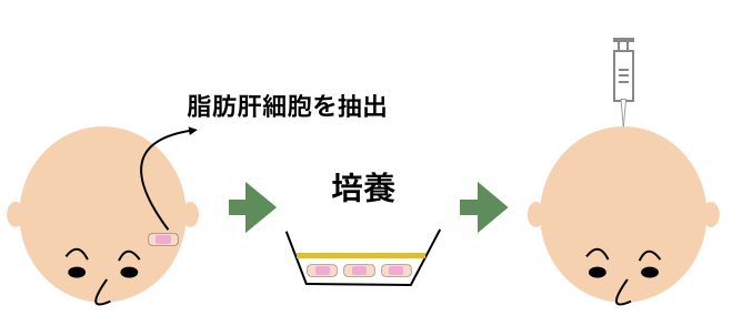 脂肪幹細胞療法の仕組み