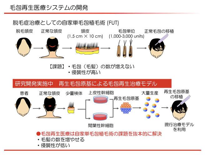 京セラの毛髪再生治療技術のイメージ