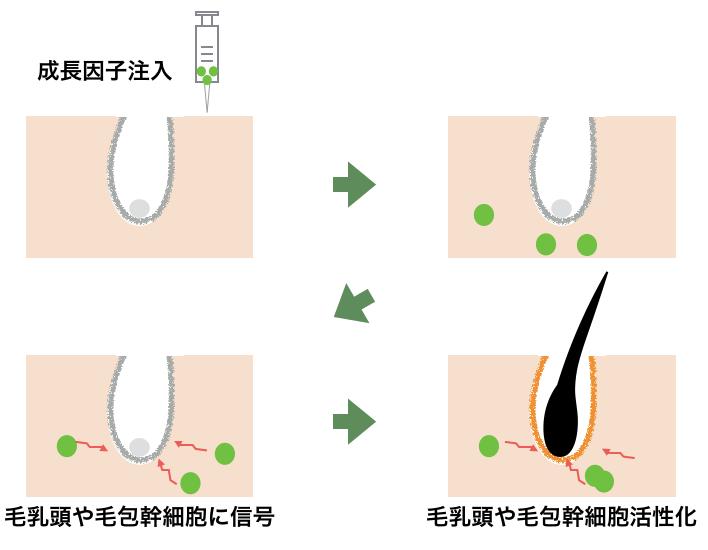 グロースファクター治療(グロスファクター)の仕組み