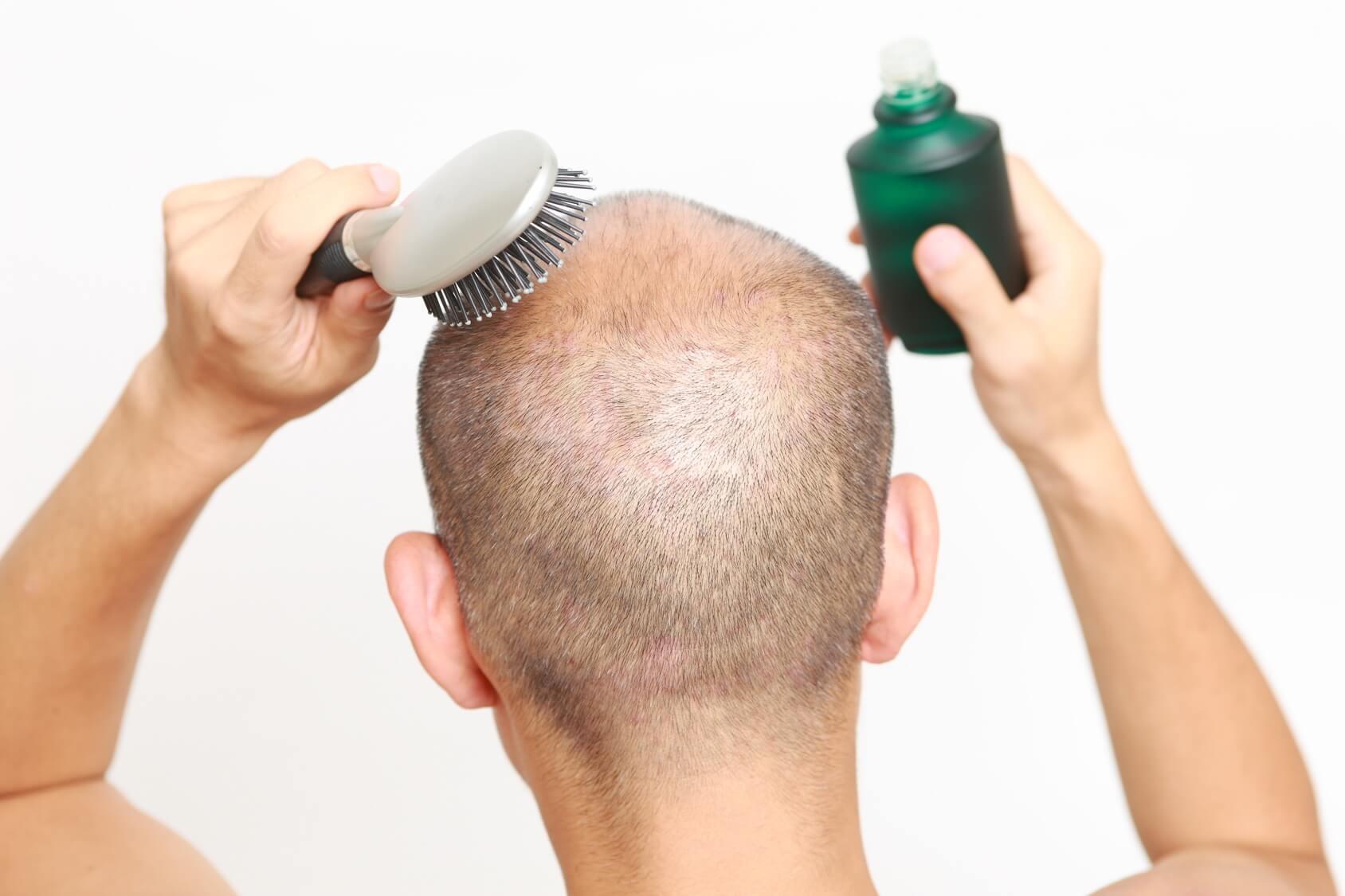 トニック 効果 育毛 サクセス
