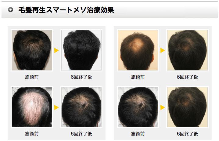 湘南美容クリニックの毛髪再生メソセラピー
