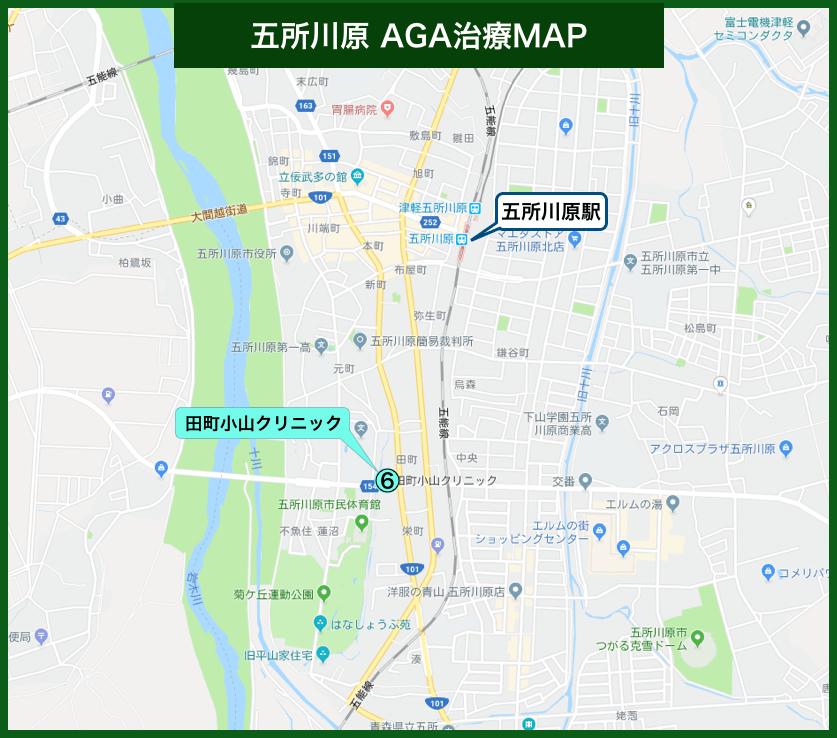 五所川原周辺AGA治療MAP