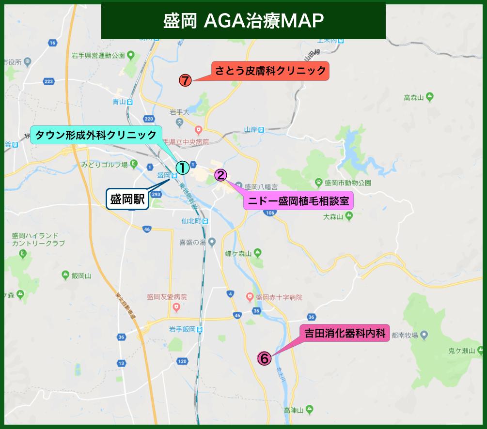 盛岡AGA治療MAP