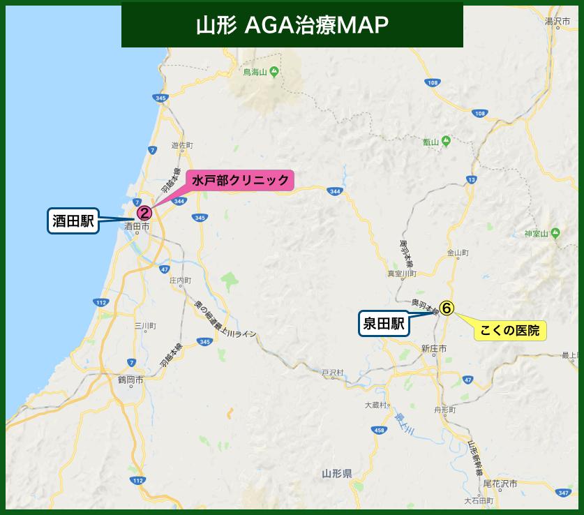 山形AGA治療MAP