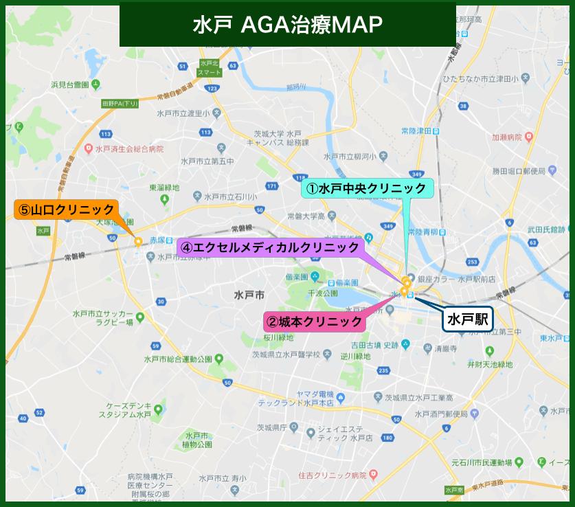 水戸AGA治療MAP
