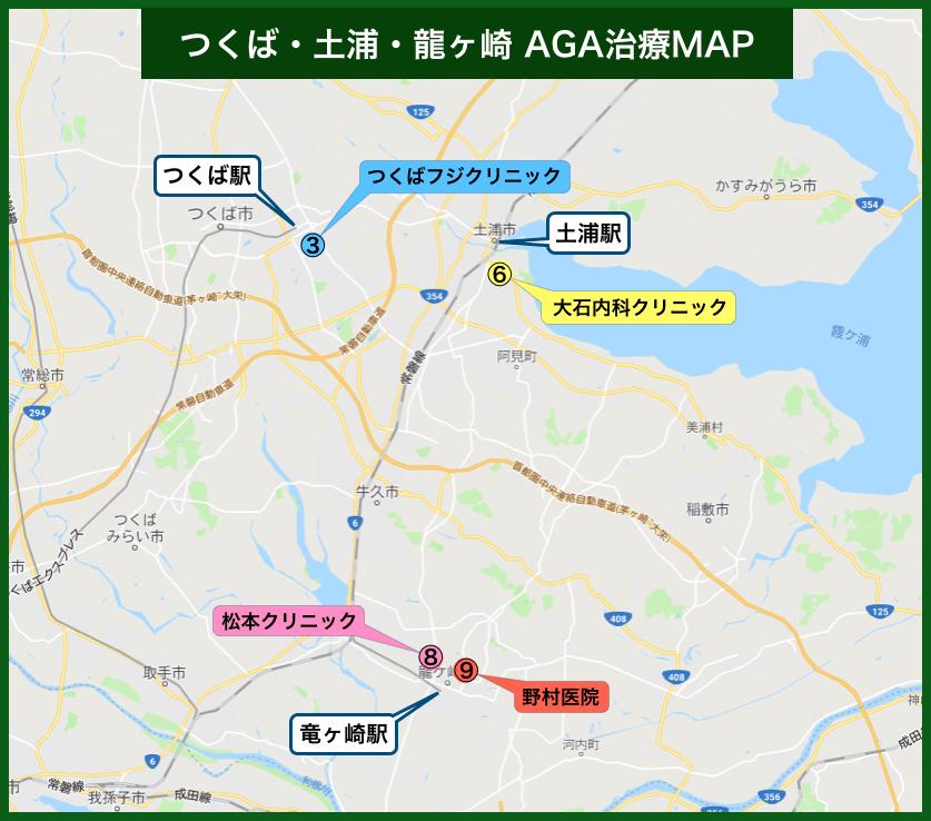 茨城AGA治療MAP