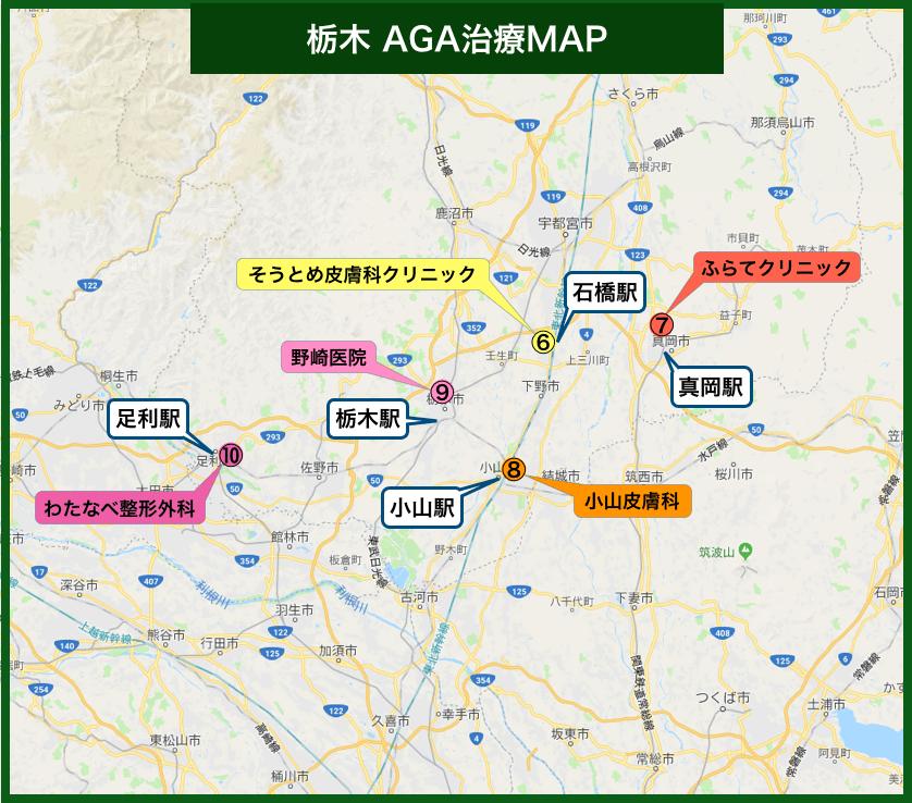 栃木AGA治療MAP