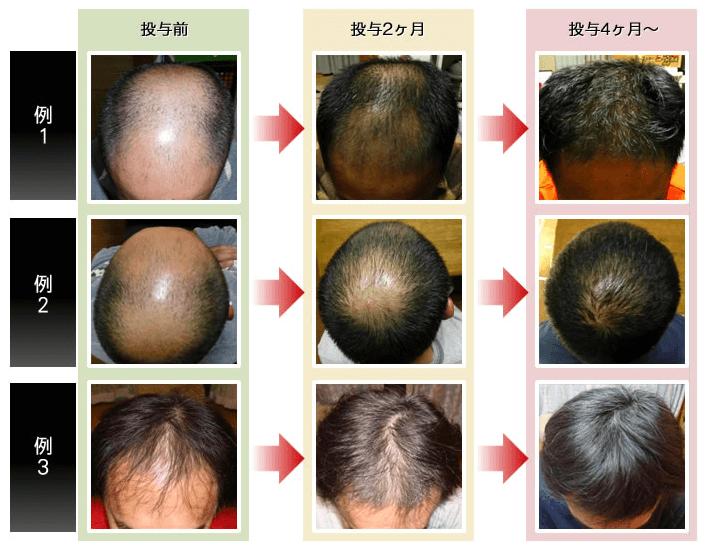 オーダーメイド治療薬の発毛効果例