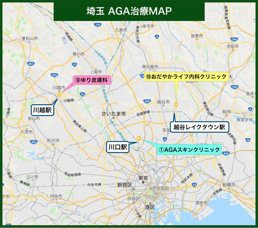埼玉AGA治療MAP