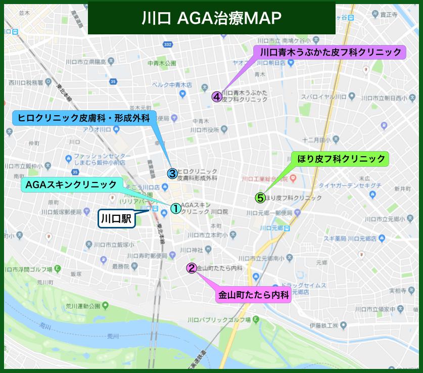 川口AGA治療MAP